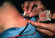 Moxabehandlung in Tibet